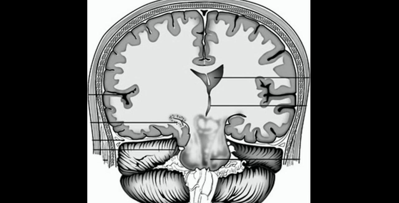 Какие бывают кисты в голове
