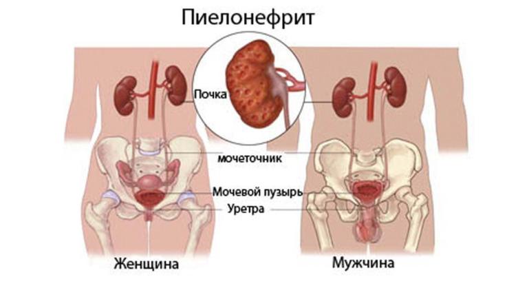 Осложнения течения заболевания
