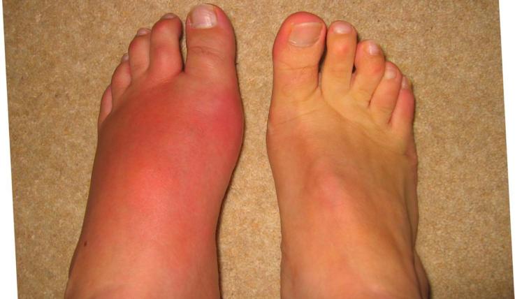 Дифференциальный диагноз крапивницы