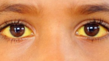 Желтые глаза