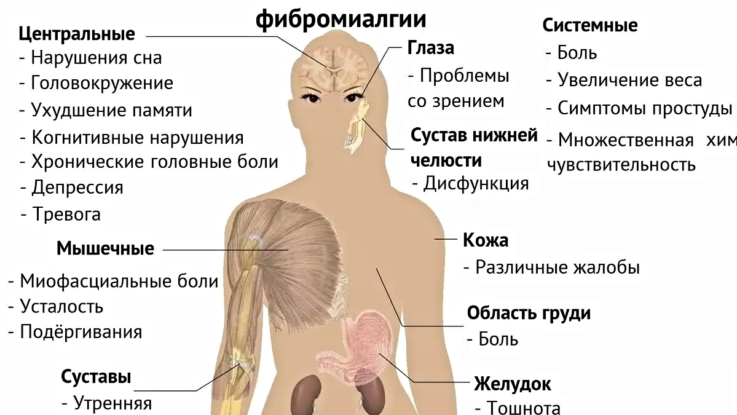 Синдром фибромиалгии