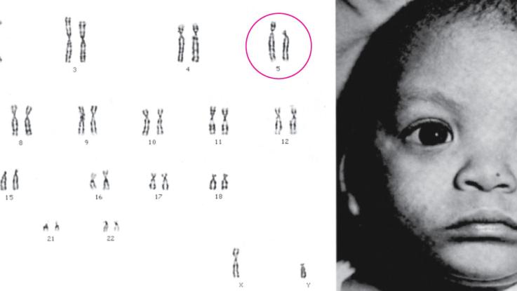 Мутация хромосом