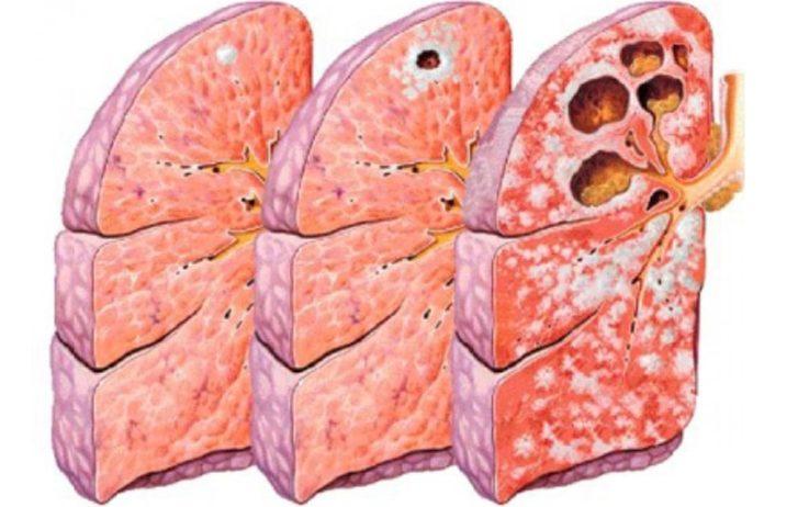 Вторичный туберкулёз