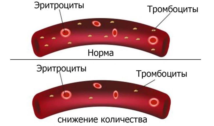 Клинические проявления апластической анемии