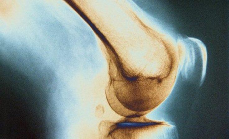 Туберкулёз костей и суставов
