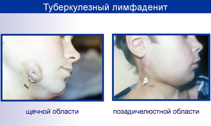 Туберкулёзный лимфаденит