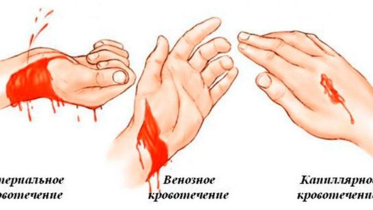 Виды кровотечения