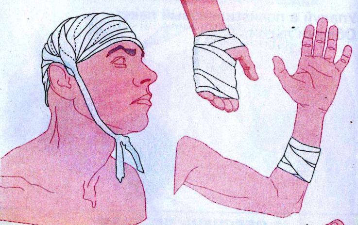 Места пережатия сосудов при различных артериальных кровотечениях