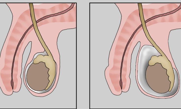 ушибы наружных половых органов