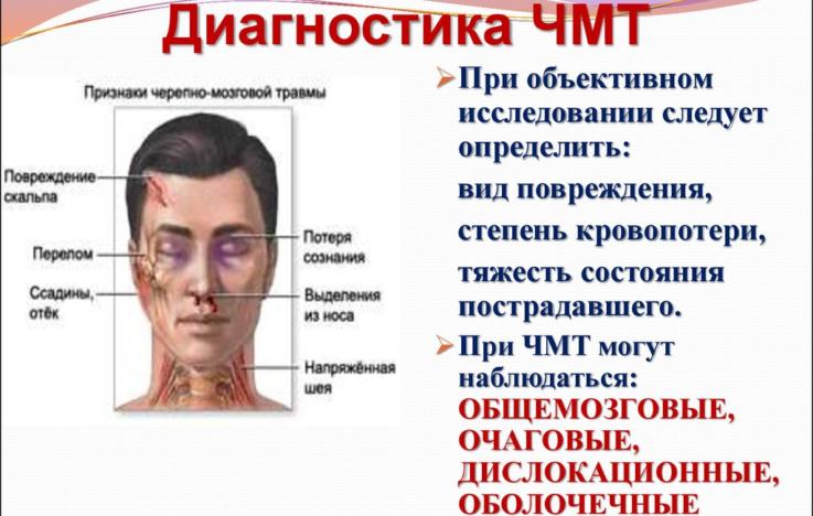 Критерии диагностики