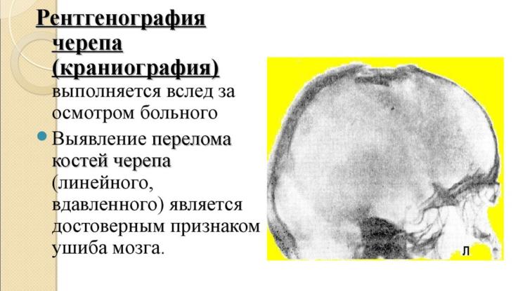 Ушиб мозга средней степени тяжести