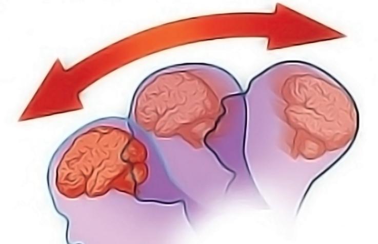 Легкая черепно-мозговая травма