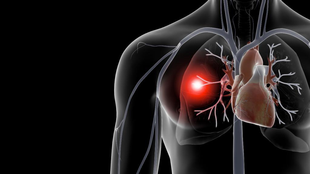 Причины, лечение и прогноз для жизни при тромбоэмболии легочной артерии