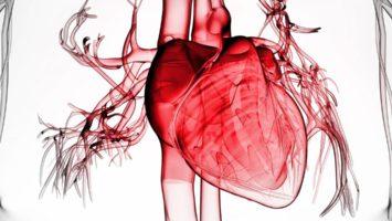 Аневризма сердца