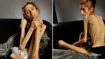 Болезнь анорексия