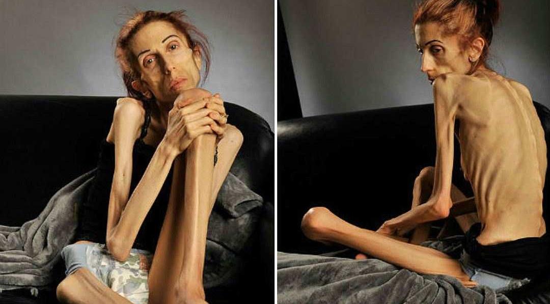 Алкогольная анорексия новая угроза для современных женщин