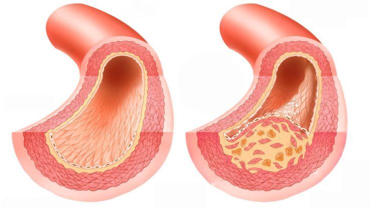Причины поражения синусового узла