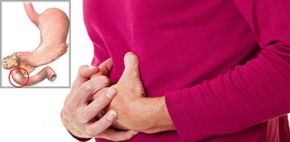 Эрозивный бульбит – симптомы, лечение, диеты, виды эрозивного бульбита