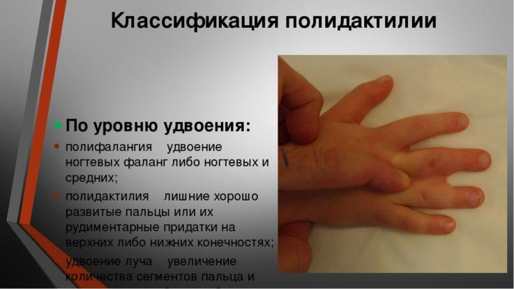 Классификация полидактилии