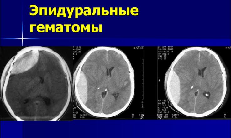 Лечение черепно-мозговых травм