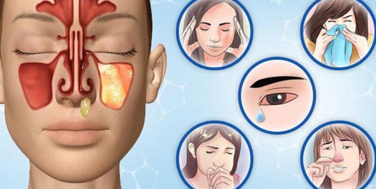 Возможна ли профилактика менингита