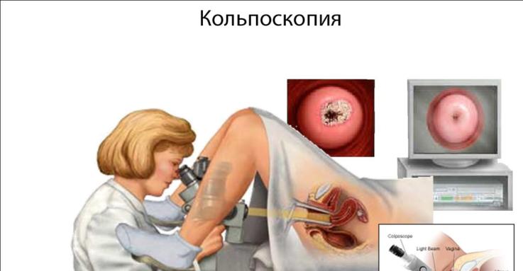 Как определить вирус папилломы человека