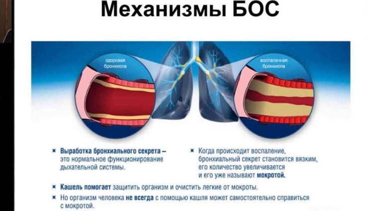Причины возникновения бронхообструктивного синдрома у детей