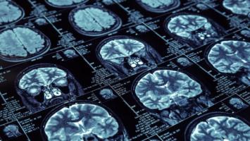 Воспаление оболочки головного мозга