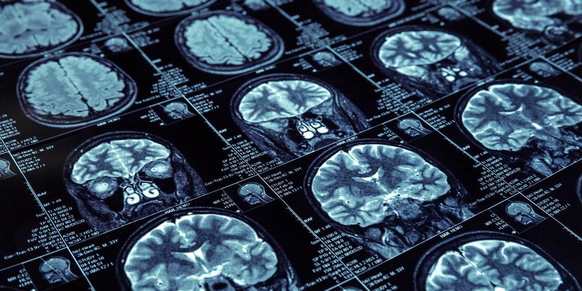 Мучают головные боли после менингита