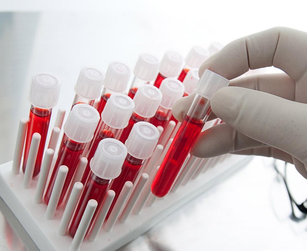 Что Такое КФК в Анализе Крови - Норма и 9 Причин Отклонений
