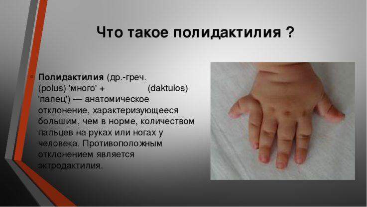 Причины полидактилии
