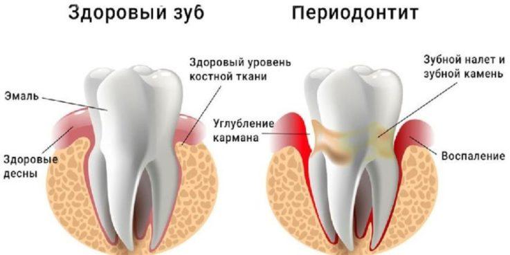 Симптомы зубной боли