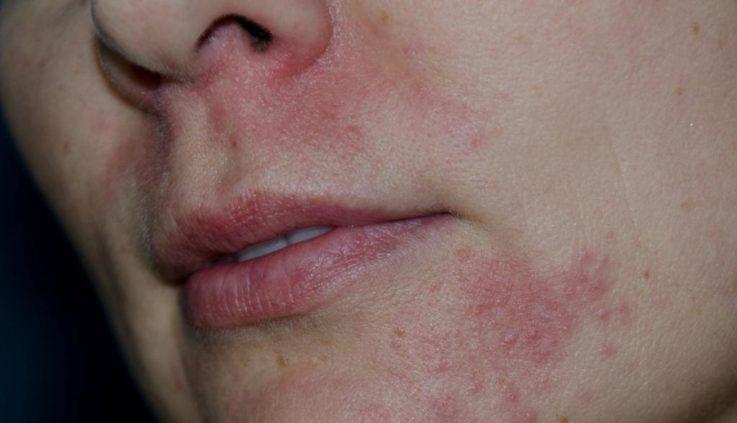 Переоральный дерматит