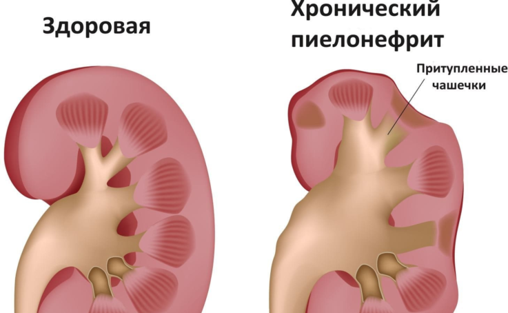 Стадии хронического пиелонефрита