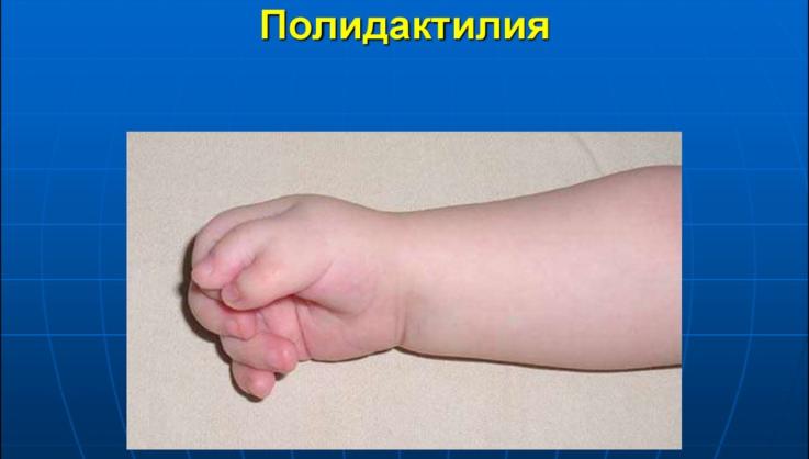 Клинические признаки полидактилии