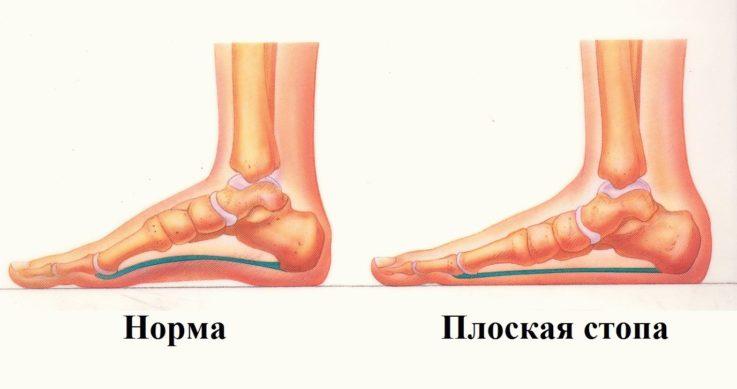 Классификация и причины возникновения плоскостопия