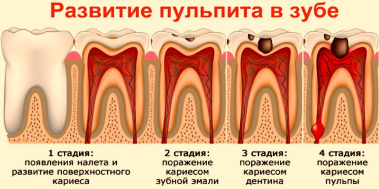 Виды и причины зубной боли