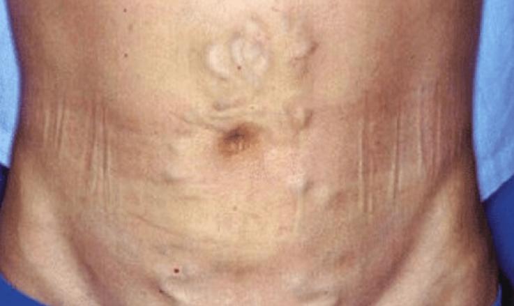 Синдром Бадда-Киари