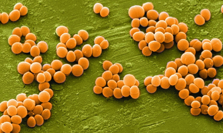 5 бактерий, способных приводить к хроническому пиелонефриту