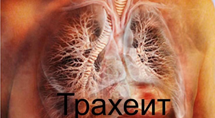 Что такое трахеит