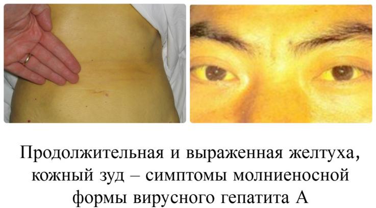 Основные симптомы гепатита А