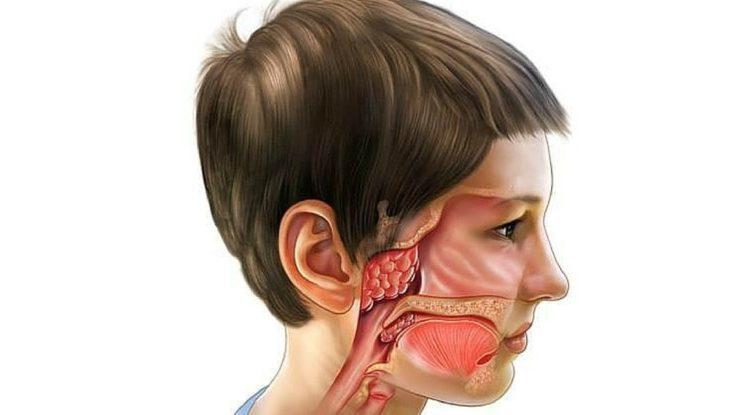 Дифференциальная диагностика гайморита
