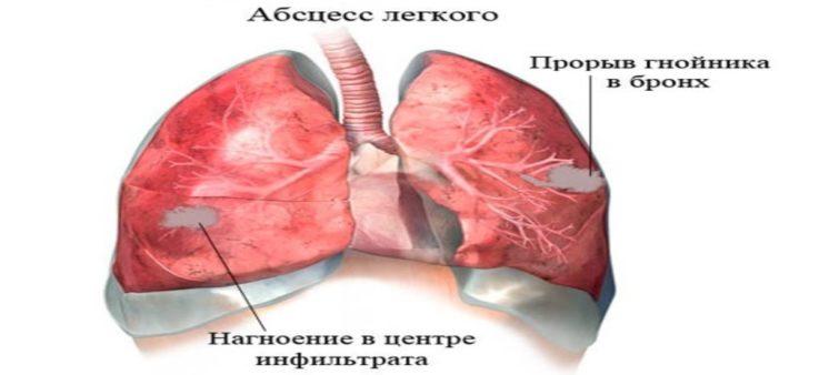 Поражения внутренних органов
