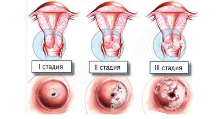 Виды дисплазии шейки матки