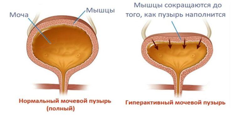Формы заболевания