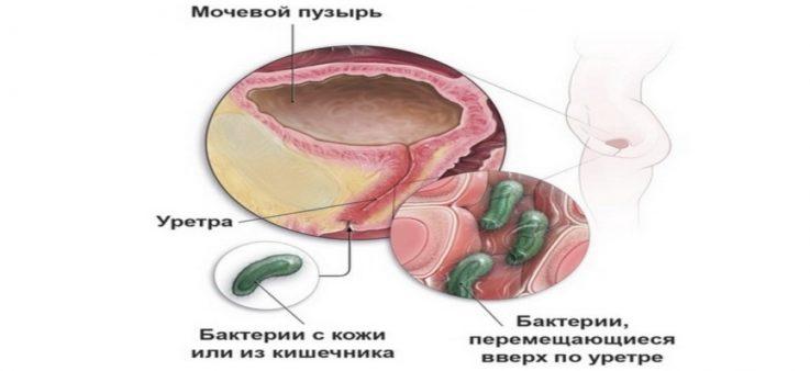 Что же такое инфекция мочевыводящих путей