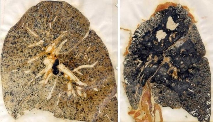 Что происходит в лёгких?