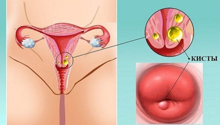 Кисты шейки матки и беременность
