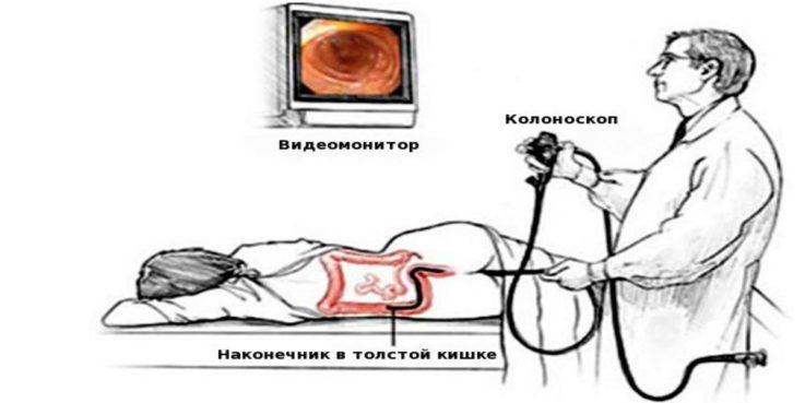 Методы, способствующие выявлению заболеваний толстого кишечника