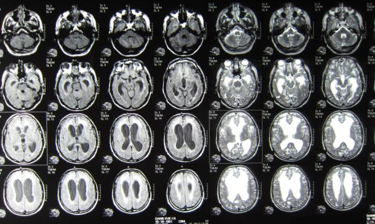 Инструментальная диагностика гидроцефалии